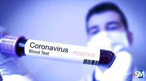 MENCEGAH: Pemkab Banyumas mendorong masyarakat untuk lebih banyak mencegah penyebaran virus corona dan diminta tak panik (foto ilustrasi diambil dari suaramerdeka.com)